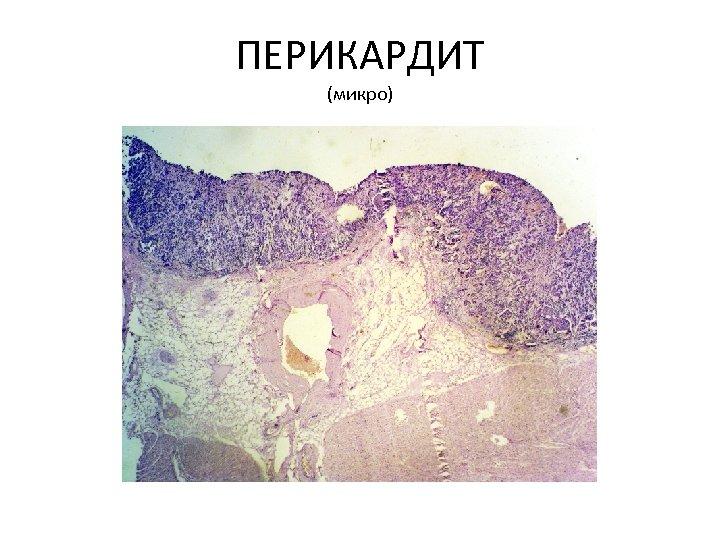ПЕРИКАРДИТ (микро)