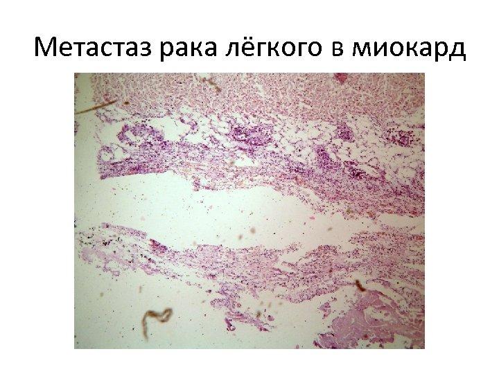 Метастаз рака лёгкого в миокард