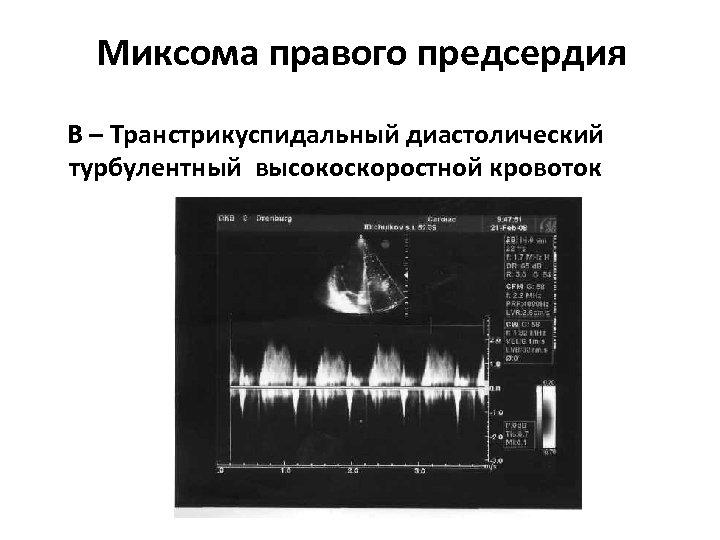 Миксома правого предсердия В – Транстрикуспидальный диастолический турбулентный высокоскоростной кровоток
