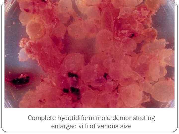 Complete hydatidiform mole demonstrating enlarged villi of various size