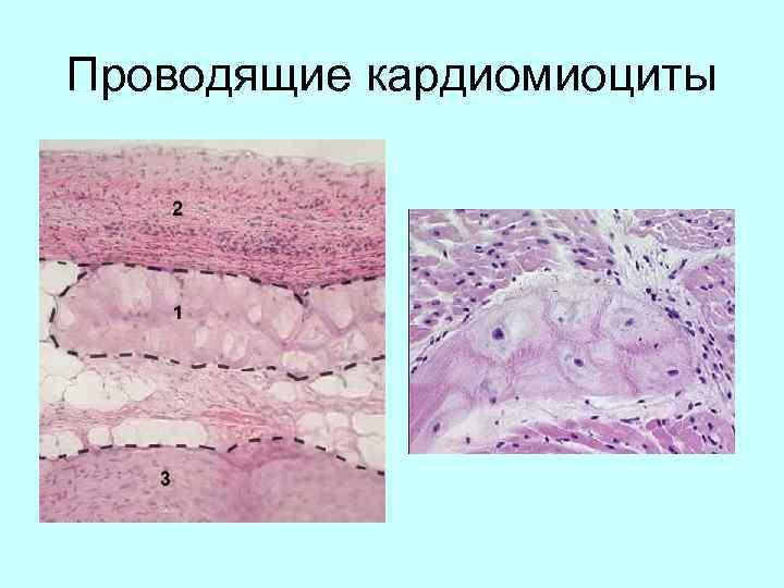 Проводящие кардиомиоциты
