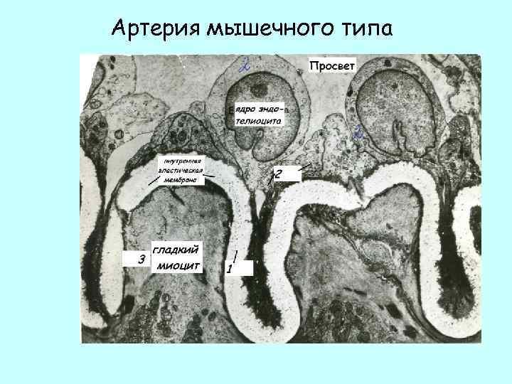 Артерия мышечного типа