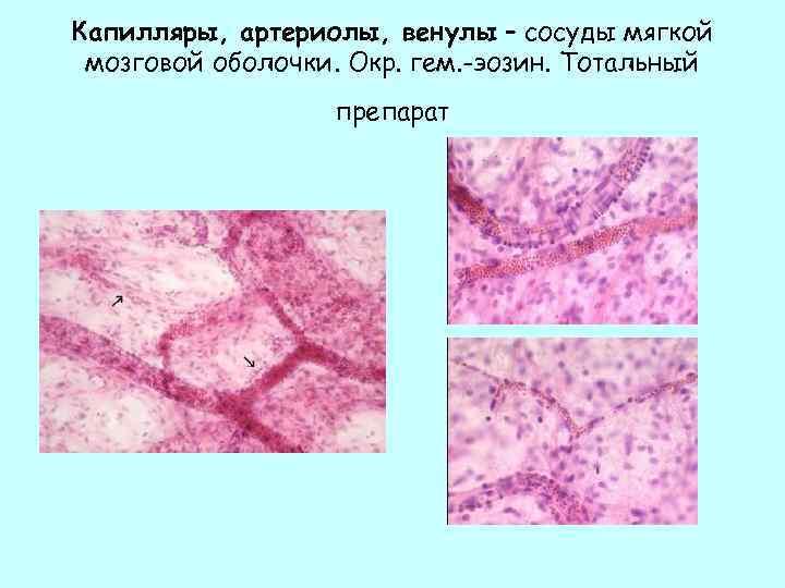 Капилляры, артериолы, венулы – сосуды мягкой мозговой оболочки. Окр. гем. -эозин. Тотальный препарат