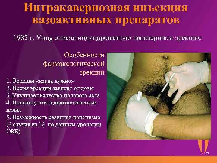 фармакологическое тестирование с использованием интракавернозных инъекций вазодилататоров 200