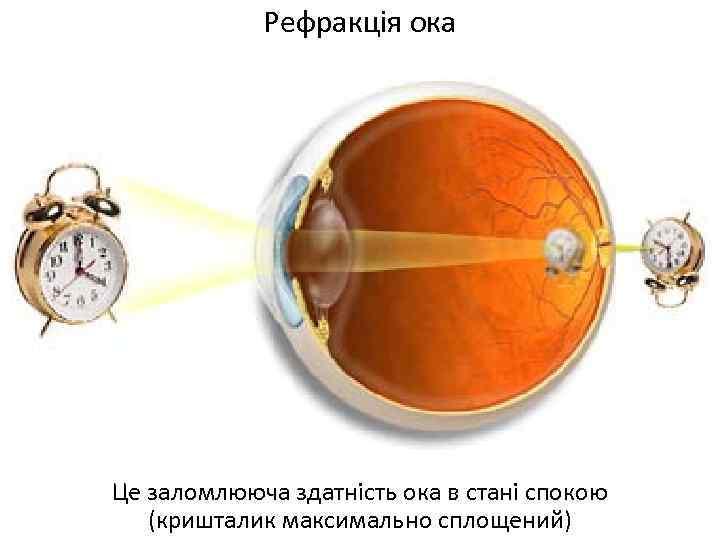 Рефракція ока Це заломлююча здатність ока в стані спокою (кришталик максимально сплощений)