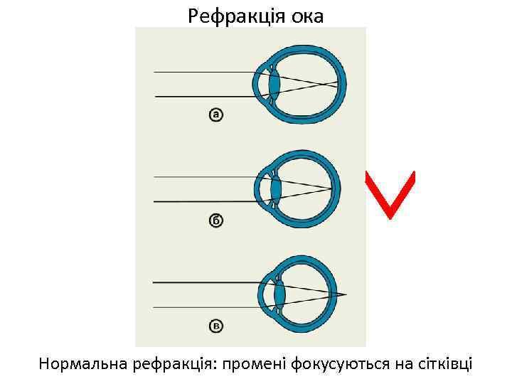 Рефракція ока Нормальна рефракція: промені фокусуються на сітківці