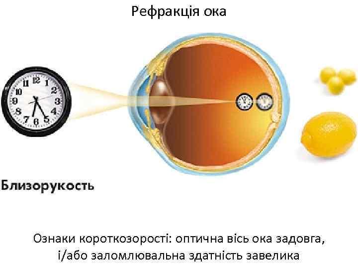 Рефракція ока Ознаки короткозорості: оптична вісь ока задовга, і/або заломлювальна здатність завелика