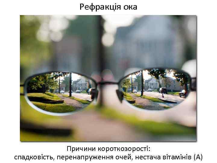 Рефракція ока Причини короткозорості: спадковість, перенапруження очей, нестача вітамінів (А)