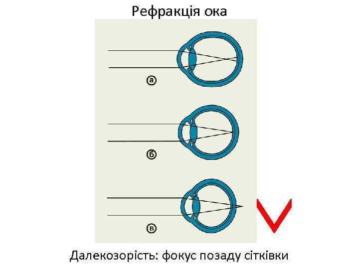 Рефракція ока Далекозорість: фокус позаду сітківки