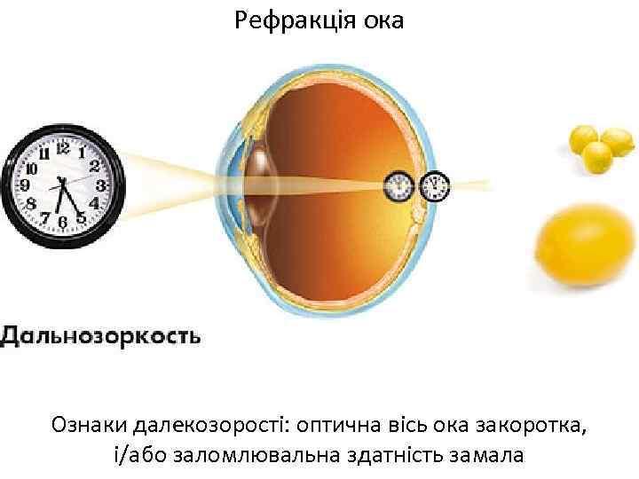 Рефракція ока Ознаки далекозорості: оптична вісь ока закоротка, і/або заломлювальна здатність замала