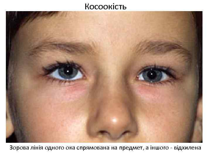 Косоокість Зорова лінія одного ока спрямована на предмет, а іншого - відхилена