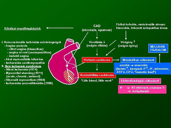 Klinikai manifesztációk I. Konvencionális iszkémiás szívbetegségek - Angina pectoris - effort angina (klasszikus) -