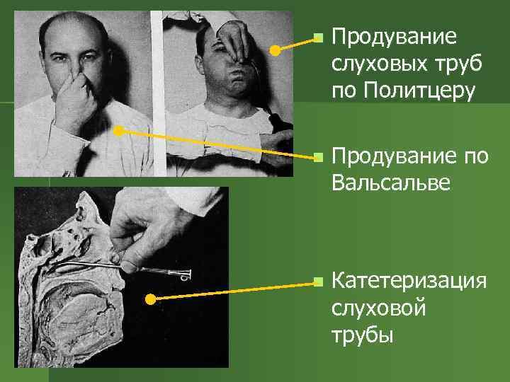 n Продувание слуховых труб по Политцеру n Продувание по Вальсальве n Катетеризация слуховой трубы