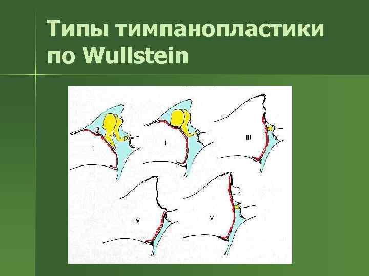 Типы тимпанопластики по Wullstein