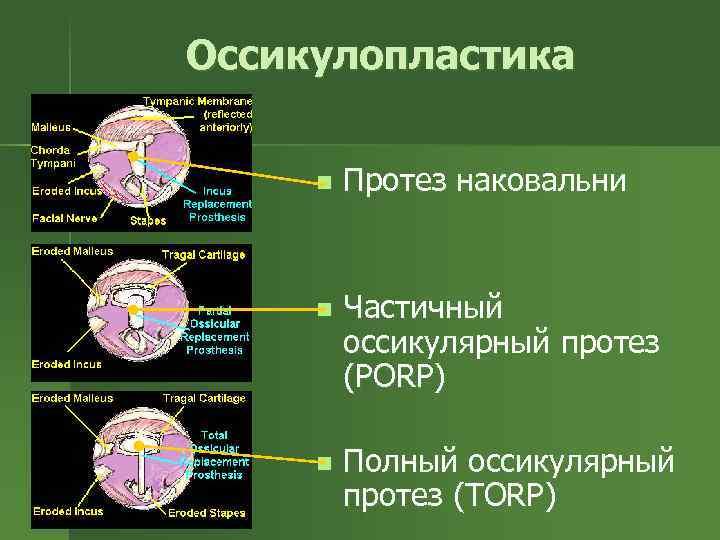 Оссикулопластика n Протез наковальни n Частичный оссикулярный протез (PORP) n Полный оссикулярный протез (TORP)
