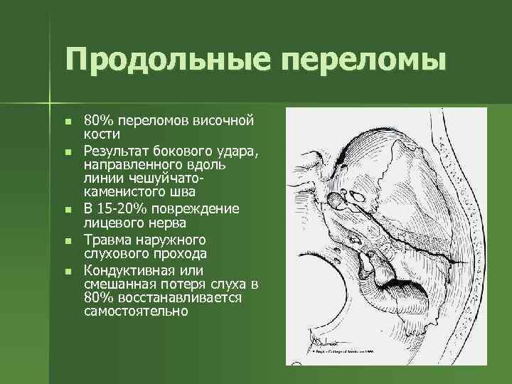 Продольные переломы n n n 80% переломов височной кости Результат бокового удара, направленного вдоль