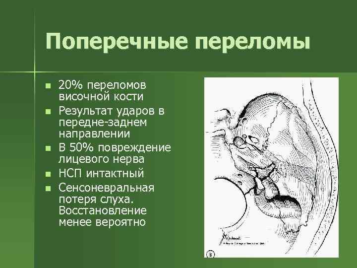 Поперечные переломы n n n 20% переломов височной кости Результат ударов в передне-заднем направлении