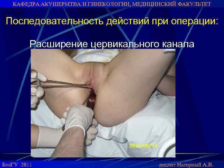 operatsiya-abort-porno-klipi-staroy-viagri-smotret-v-onlayn