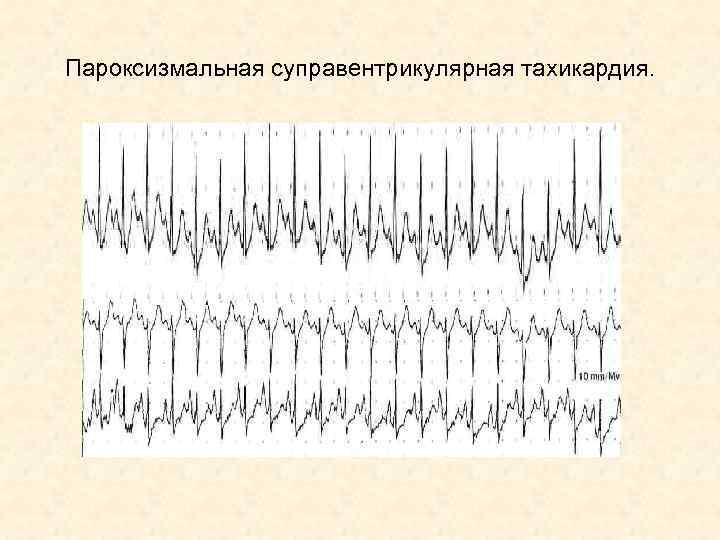 Пароксизмальная суправентрикулярная тахикардия.