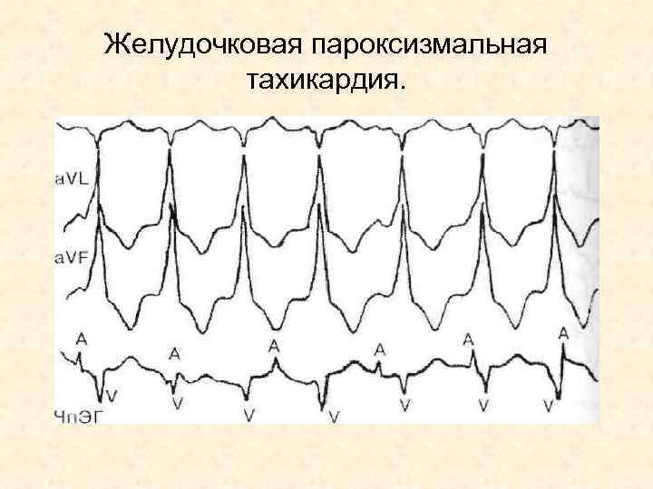 Желудочковая пароксизмальная тахикардия.