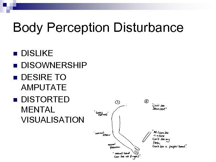 Body Perception Disturbance n n DISLIKE DISOWNERSHIP DESIRE TO AMPUTATE DISTORTED MENTAL VISUALISATION