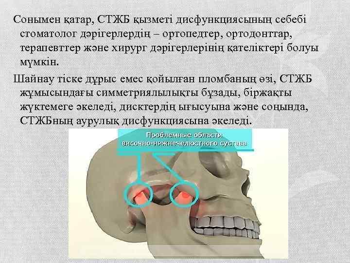 Сонымен қатар, СТЖБ қызметі дисфункциясының себебі стоматолог дәрігерлердің – ортопедтер, ортодонттар, терапевттер және хирург