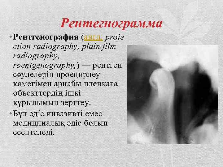 Рентегнограмма • Рентгенография (англ. proje ction radiography, plain film radiography, roentgenography, ) — рентген