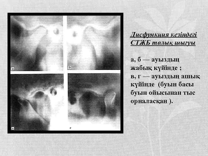 Дисфункция кезіндегі СТЖБ толық шығуы а, б — ауыздың жабық күйінде ; в, г
