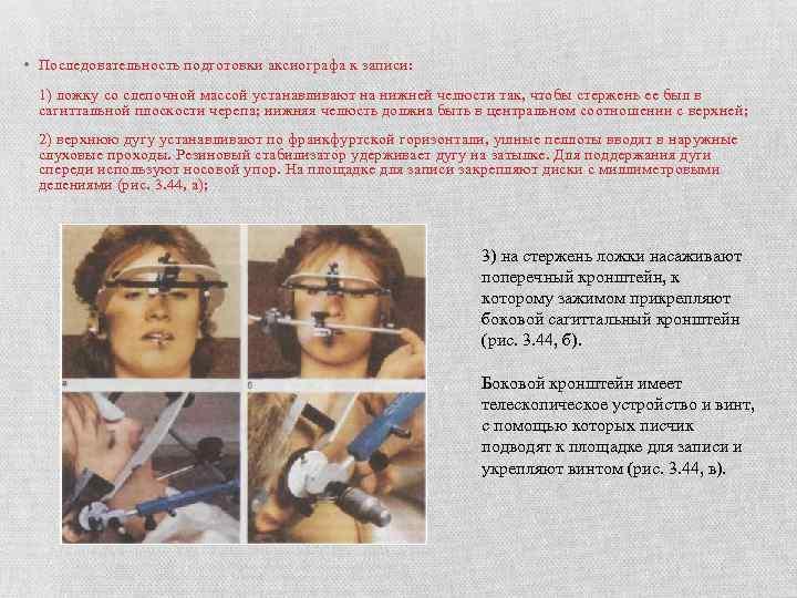 • Последовательность подготовки аксиографа к записи: 1) ложку со слепочной массой устанавливают на