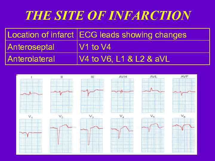 THE SITE OF INFARCTION Location of infarct ECG leads showing changes Anteroseptal V 1