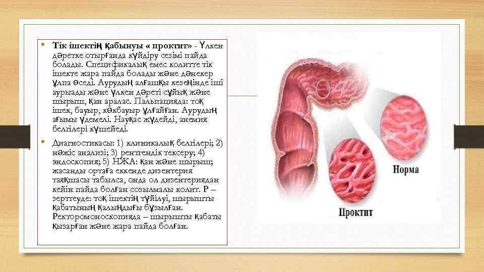 • Тік ішектің қабынуы « проктит» - Үлкен дәретке отырғанда күйдіру сезімі пайда