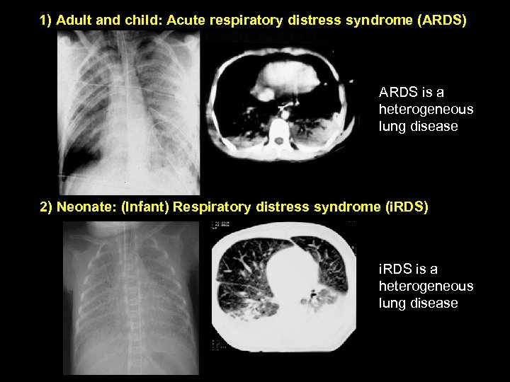 1) Adult and child: Acute respiratory distress syndrome (ARDS) ARDS is a heterogeneous lung