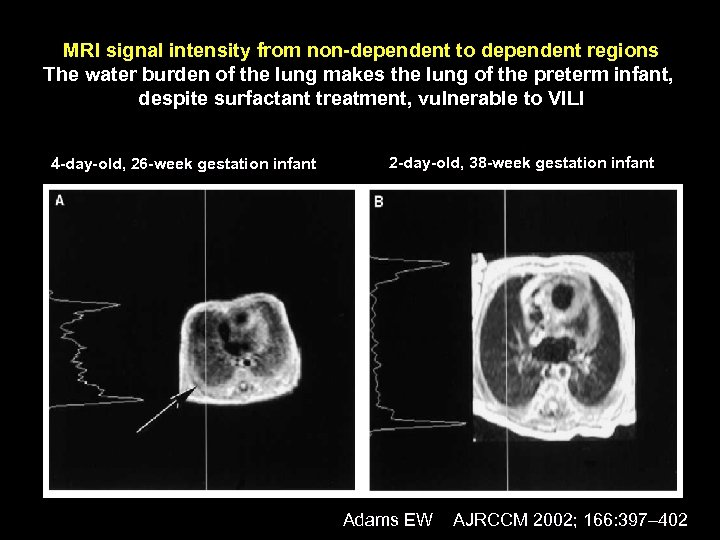 MRI signal intensity from non-dependent to dependent regions The water burden of the lung