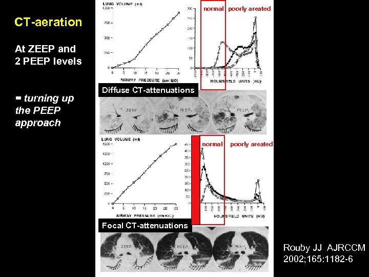 normal poorly areated CT-aeration At ZEEP and 2 PEEP levels = turning up the