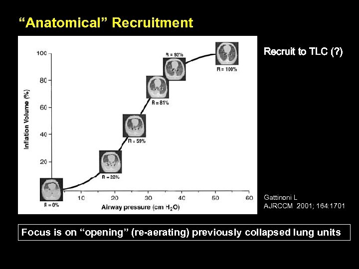 """Anatomical"" Recruitment Recruit to TLC (? ) Gattinoni L AJRCCM 2001; 164: 1701 Focus"