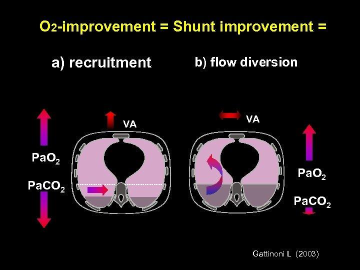 O 2 -improvement = Shunt improvement = a) recruitment VA Pa. O 2 Pa.