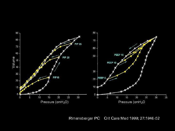 Volume 40 Pressure (cm. H 2 O) Rimensberger PC Crit Care Med 1999; 27: