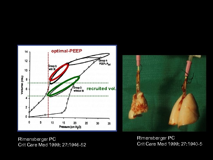 Lung recruitment: The optimal least PEEP approach optimal-PEEP recruited vol. Rimensberger PC Crit Care
