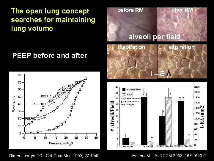 The open lung concept searches for maintaining lung volume after RM before RM alveoli