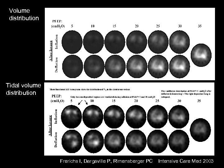 Volume distribution Tidal volume distribution Frerichs I, Dargaville P, Rimensberger PC Intensive Care Med