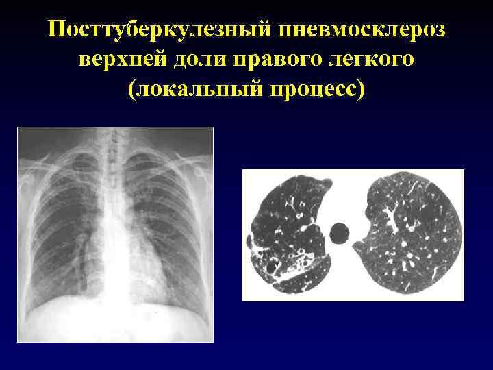 Посттуберкулезный пневмосклероз верхней доли правого легкого (локальный процесс)