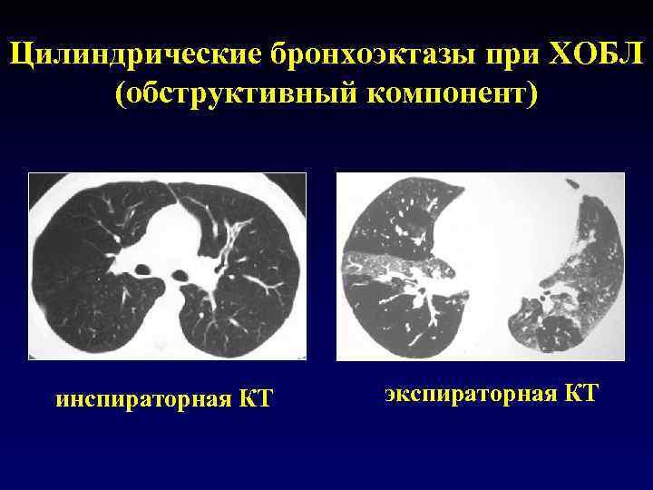 Цилиндрические бронхоэктазы при ХОБЛ (обструктивный компонент) инспираторная КТ экспираторная КТ