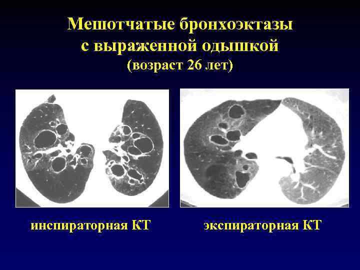 Мешотчатые бронхоэктазы с выраженной одышкой (возраст 26 лет) инспираторная КТ экспираторная КТ