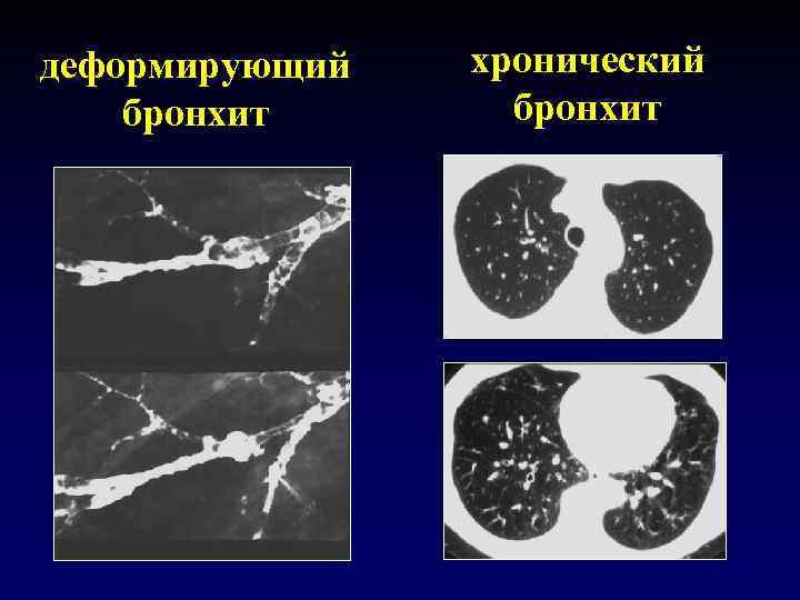 деформирующий бронхит хронический бронхит