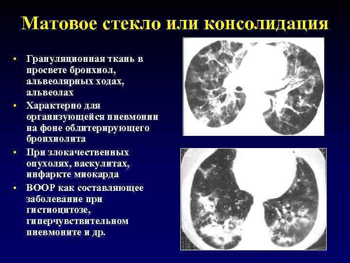 Матовое стекло или консолидация • Грануляционная ткань в просвете бронхиол, альвеолярных ходах, альвеолах •