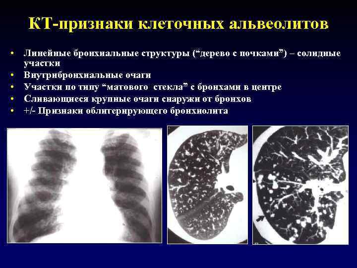 """КТ-признаки клеточных альвеолитов • Линейные бронхиальные структуры (""""дерево с почками"""") – солидные участки •"""