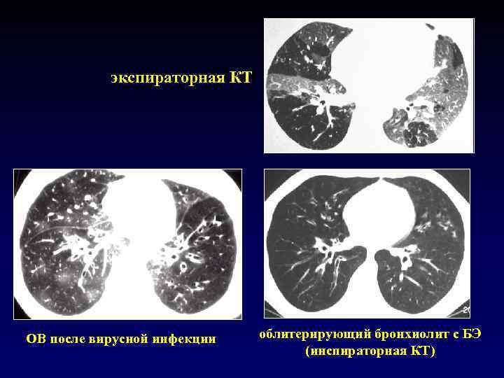 экспираторная КТ OB после вирусной инфекции облитерирующий бронхиолит с БЭ (инспираторная КТ)
