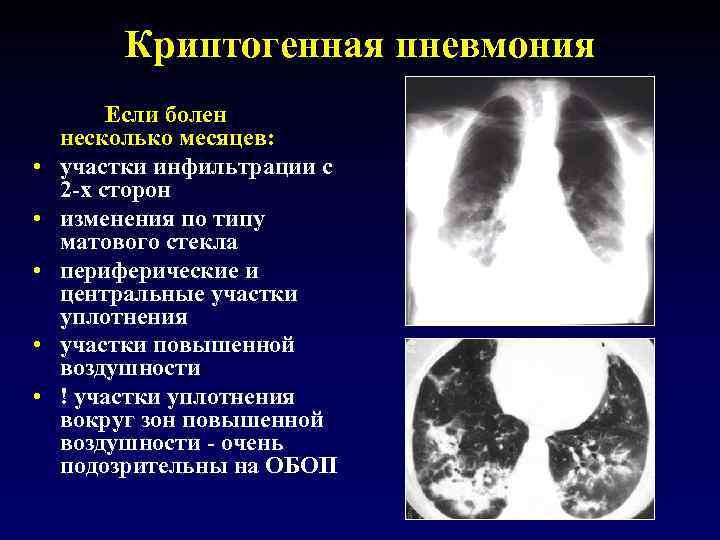 Криптогенная пневмония • • • Если болен несколько месяцев: участки инфильтрации с 2 -х