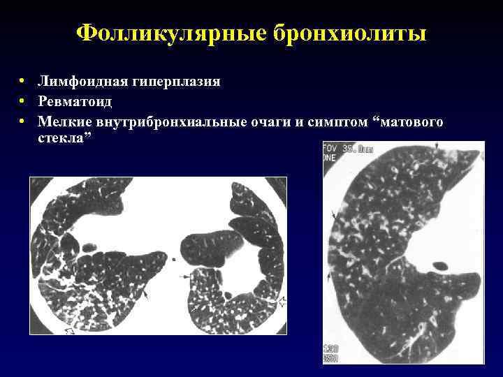 """Фолликулярные бронхиолиты • Лимфоидная гиперплазия • Ревматоид • Мелкие внутрибронхиальные очаги и симптом """"матового"""