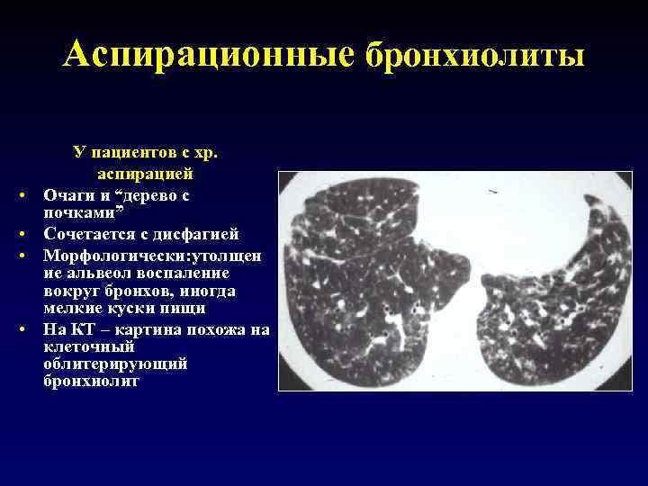 """Аспирационные бронхиолиты • • У пациентов с хр. аспирацией Очаги и """"дерево с почками"""""""